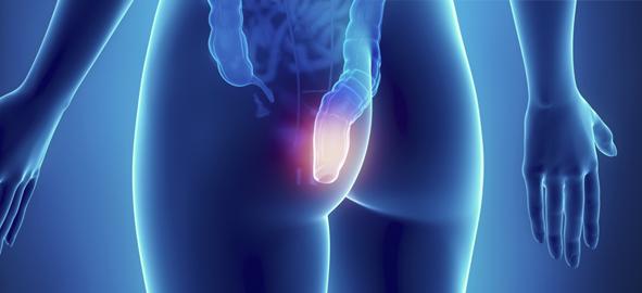 Tratamientos Naturales y Caseros Para Eliminar Hemorroides
